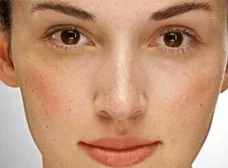 混合性肌肤平时咋处理 混合性肌肤保养.jpg
