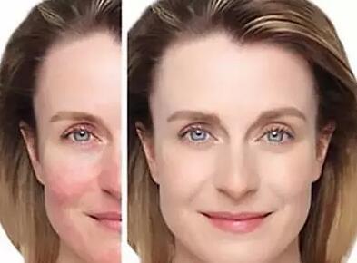 敏感性肌肤怎样护理 怎样改善敏感皮肤-第1张